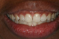 Invisalign After (2)