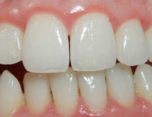 Is Professional Teeth Whitening Really Worth It?