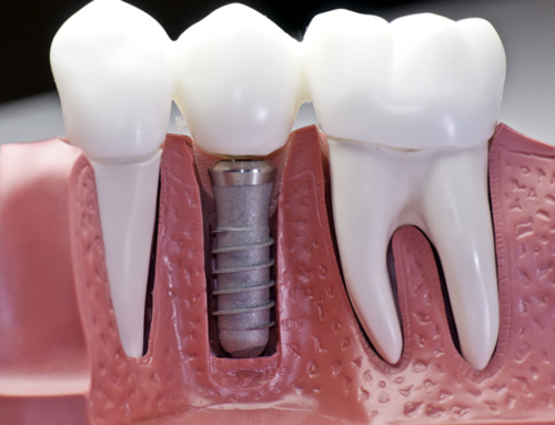 Dental Implants vs. Dentures: Which is Better?