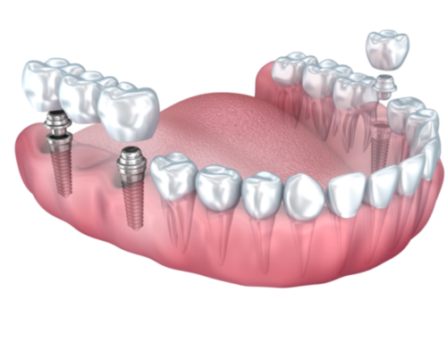Dental Implants – Most Frequently Asked Questions