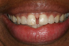 Invisalign Before (2)