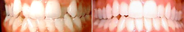 Invisalign results crowding