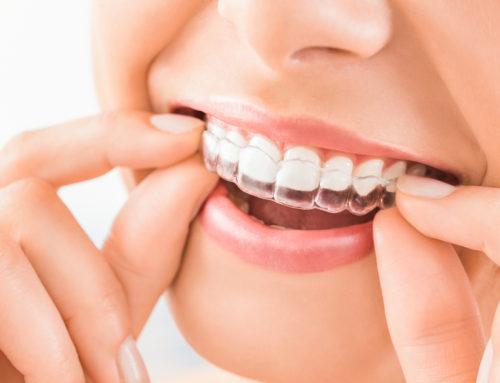 3 Procedures That Straighten Teeth