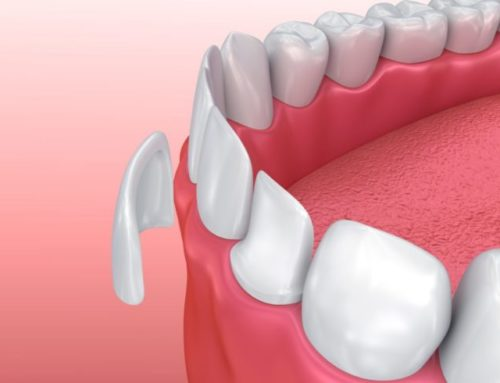 What Are Cosmetic Dental Veneers?