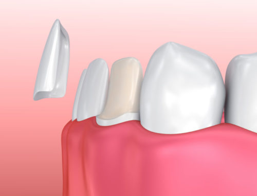 Dental Veneers VS Dental Bonding