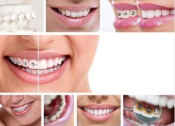 Collage of orthodontic treatment methods
