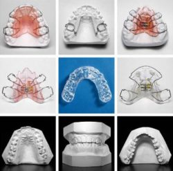 collage of orthodontic aligners