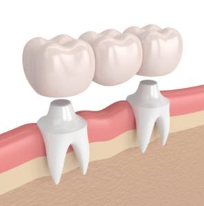 Tooth model showing dental bridges